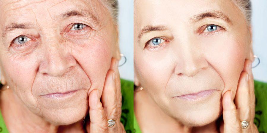 Collagen Skin Treatments